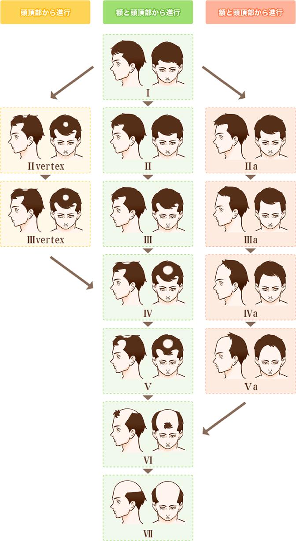 頭皮レベルの進行イメージ図