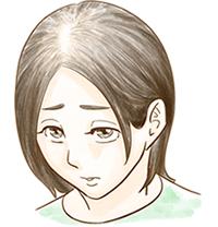 びまん性脱毛症のイメージ図