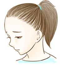 牽引性脱毛症のイメージ図