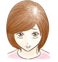 ひこう性脱毛症のイメージ図