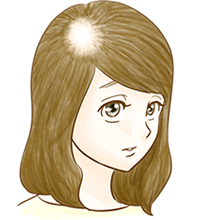 女子男性型脱毛症(FAGA)のイメージ図