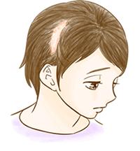抜毛症のイメージ図